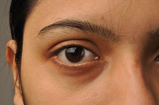 eye-biswarup-ganguly-cc-by-sa-3-0